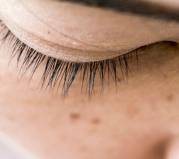 how to treat skin pigmentation